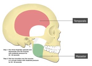 TMJ Dysfunction massage technique diagram